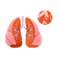 Lunge mit erkennbaren Blutgerinnsel