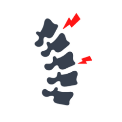 bandscheibenvorfall-symptome.png