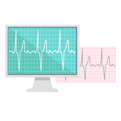 Bypass Operation bei einem Herzinfarkt