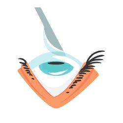 Skalpel über geöffnetem Auge