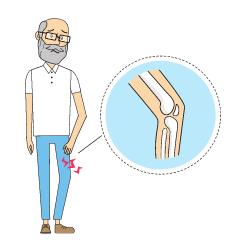 Wissen: Mann mit schmerzendem Knie
